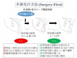 顎変形症の外科手術先行方法 サージャリーファーストアプローチ