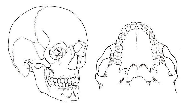 頬骨縮小形成術 術後