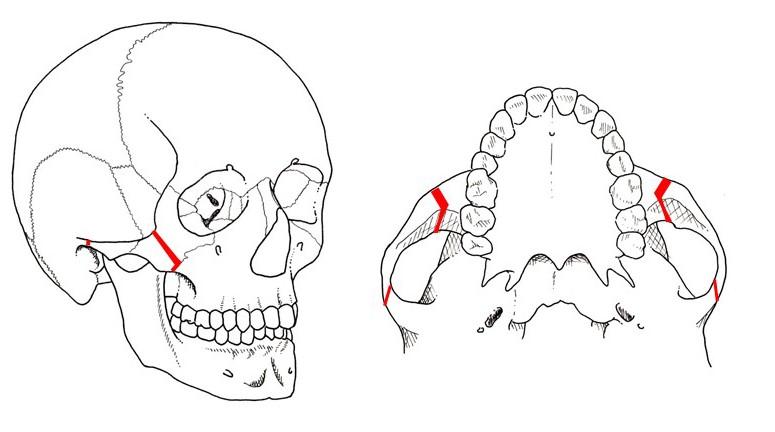 頬骨縮小形成術 術前