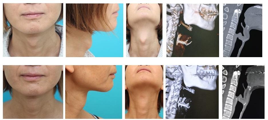 傷口が目立たないのど仏切除術  性別適合手術 女性化手術
