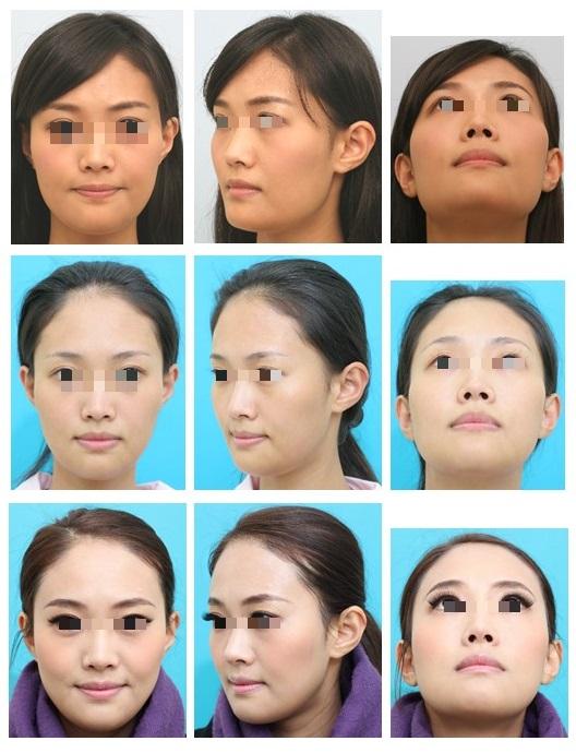 頬骨縮小形成術、下顎骨形成術、小顔形成