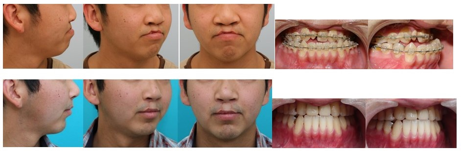 唇顎口蓋裂 反対咬合 外科矯正手術