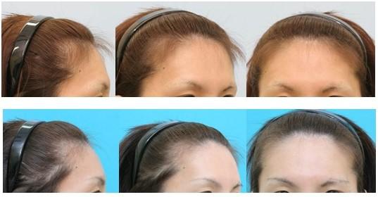 前頭洞縮小を伴う前額部形成術+眼窩上縁骨削り+人工骨ペーストによる前額形成術 女性化手術