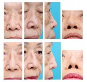 鞍鼻変形 diced cartilageによる治療
