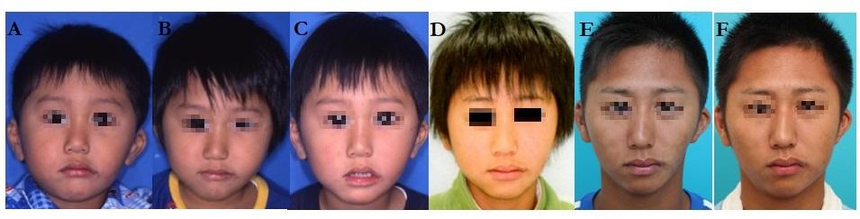 第1第2鰓弓症候群 Pruzansky typeIIA 症例