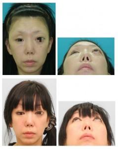 右陳旧性眼窩骨折 症例1