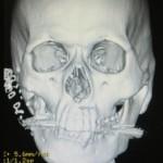 第1第2鰓弓症候群 CT画像