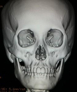 頬骨縮小形成術画像