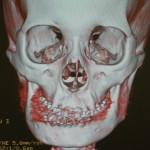 陳旧性下顎骨骨折 の手術先行方式による外科矯正治療