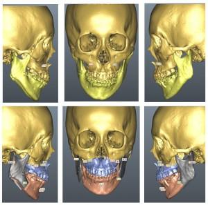 顔面非対称の3Dコンピューター手術シミュレーション
