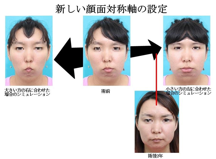 顔面非対称 新しい顔面対称軸の設定