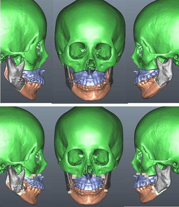 顔面非対称 ルフォーI型骨切り+下顎骨矢状分割骨切り術 3D手術シミュレーション