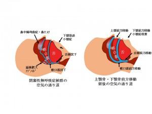 睡眠時無呼吸症候群 上下顎骨切り移動術前後の空気の通り道