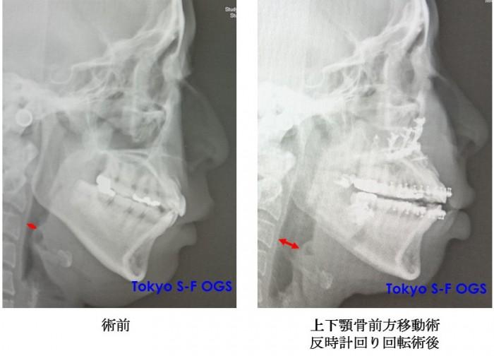 睡眠時無呼吸症候群に対する上下顎骨切り前方移動術 術前術後写真