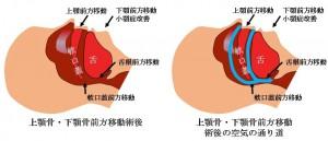 睡眠時無呼吸症候群に対する上下顎骨切り移動術による治療