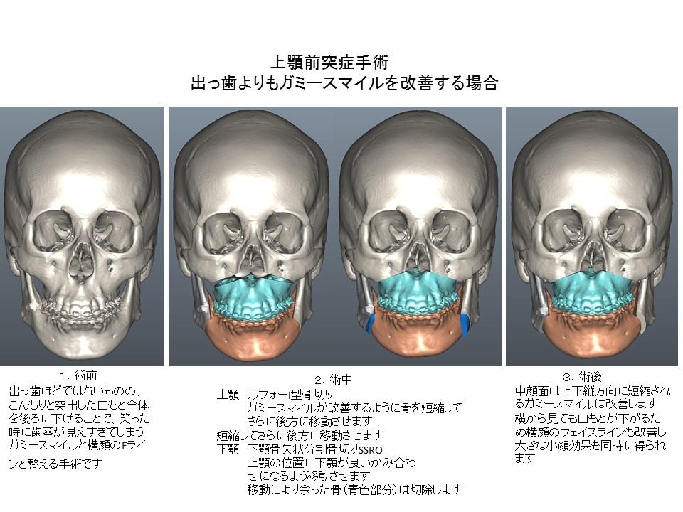 上顎前突症手術:出っ歯よりもガミースマイル、口もとの突出・こんもりを改善する場合1