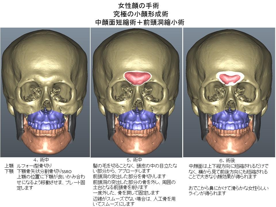 女性顔の手術 究極の小顔形成術 中顔面短縮術+前頭洞縮小術3