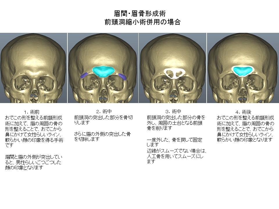 ひたい・おでこ・前額部の形成手術 前頭洞縮小術1