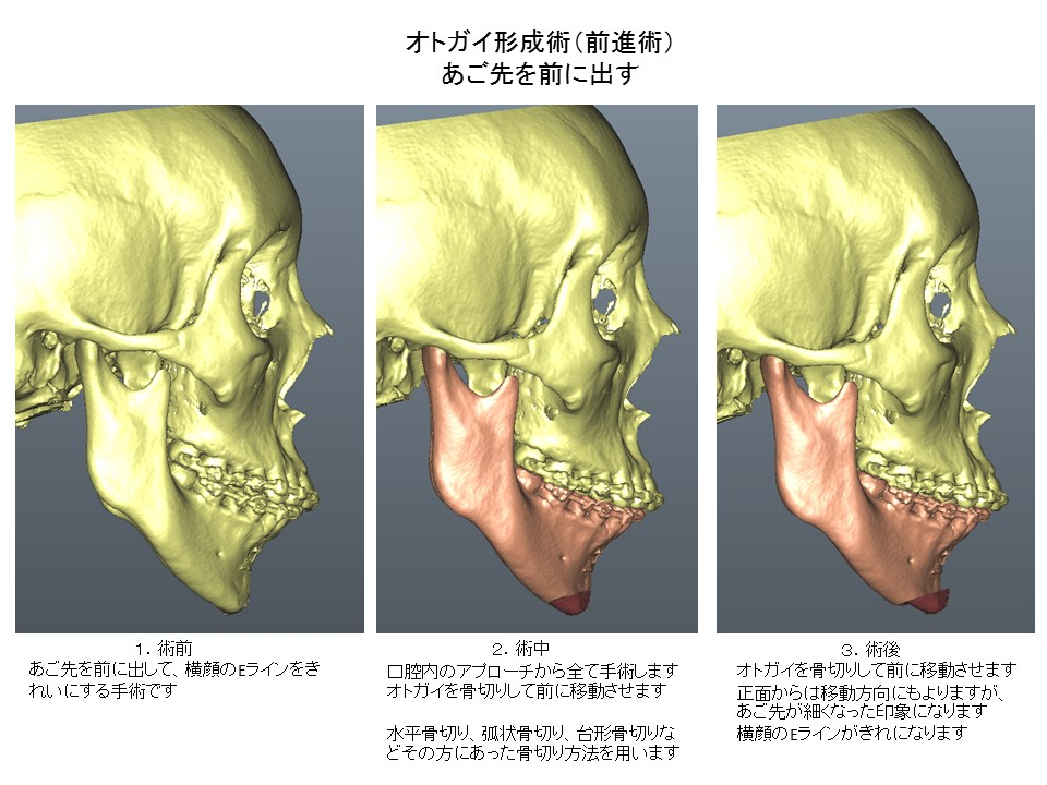 あご先を前に移動させる手術 オトガイ形成術