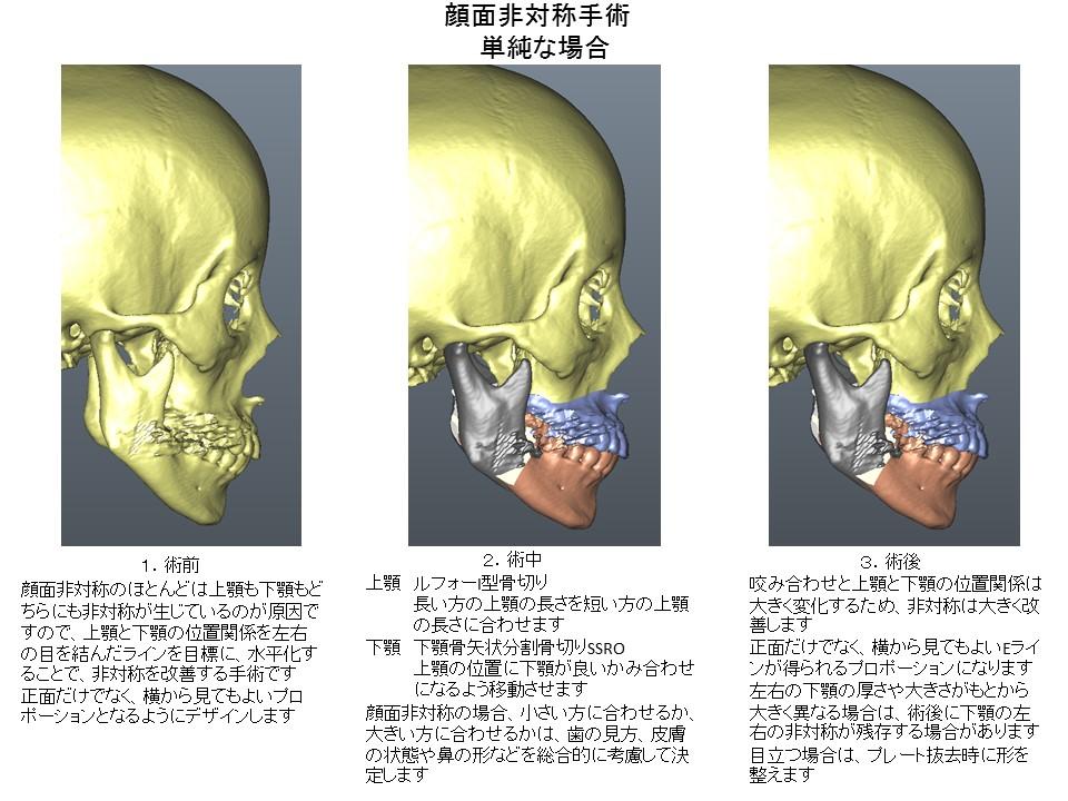 顔面非対称手術 ルフォーI型骨切り術+下顎骨矢状分割骨切り術2