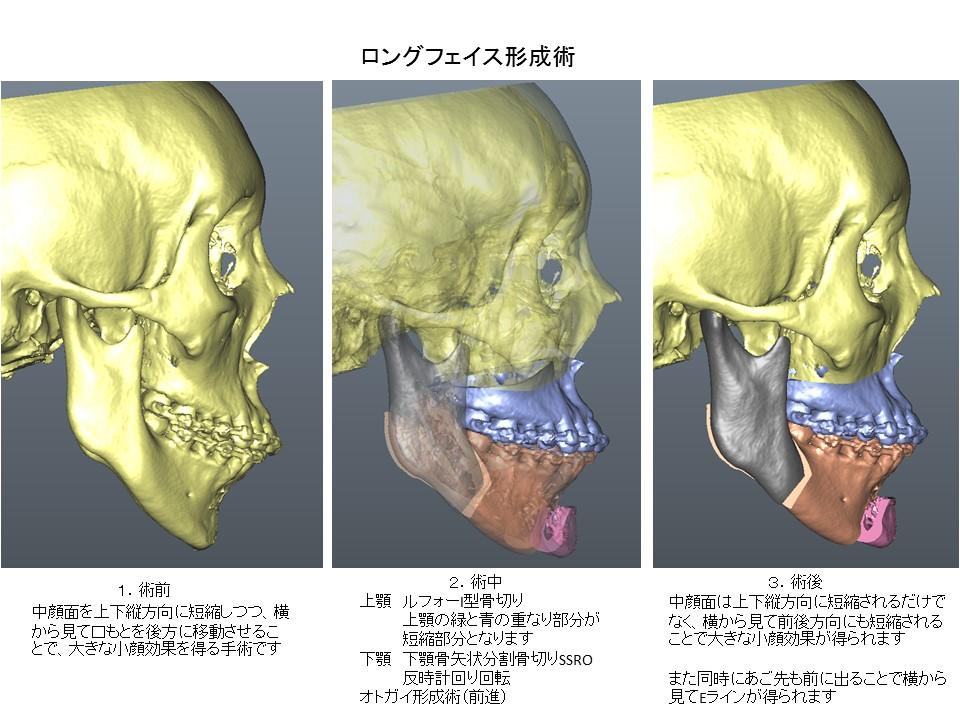 ロングフェイス・顔が長い・大きい・顎過成長の形成手術2