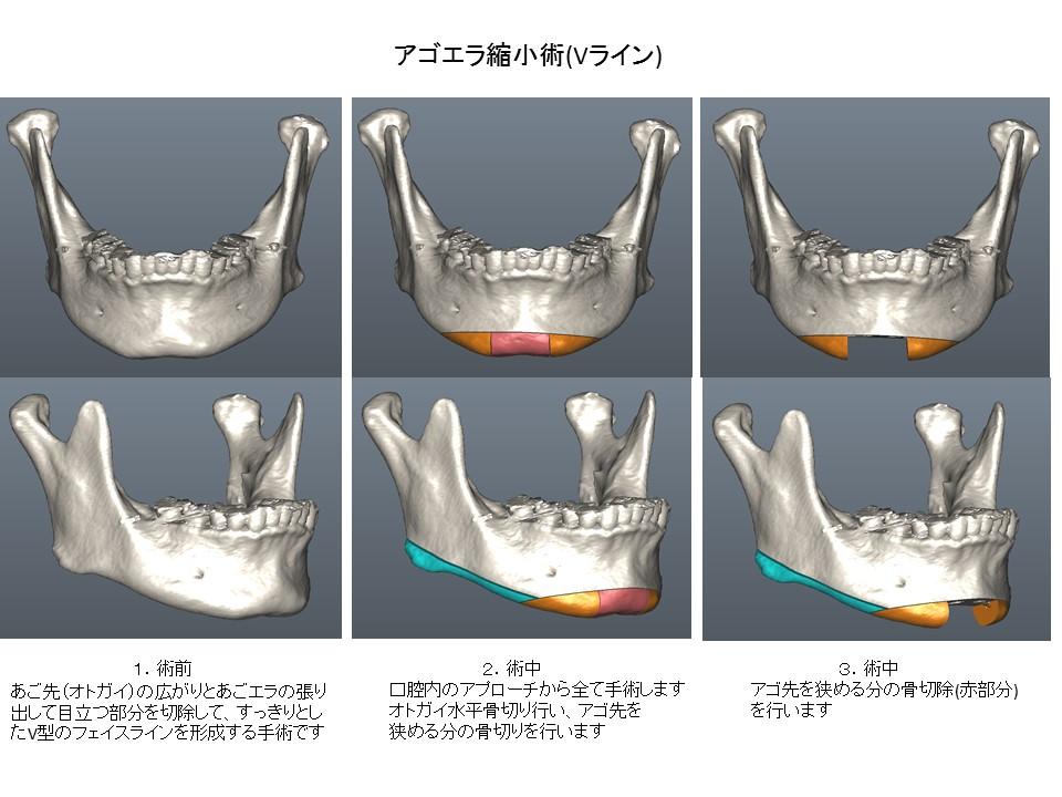 アゴエラ縮小術 Vライン形成 下顎骨形成術 顔面輪郭形成術1