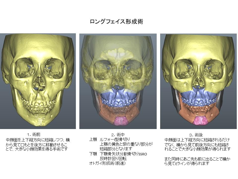 ロングフェイス・顔が長い・大きい・顎過成長の形成手術1