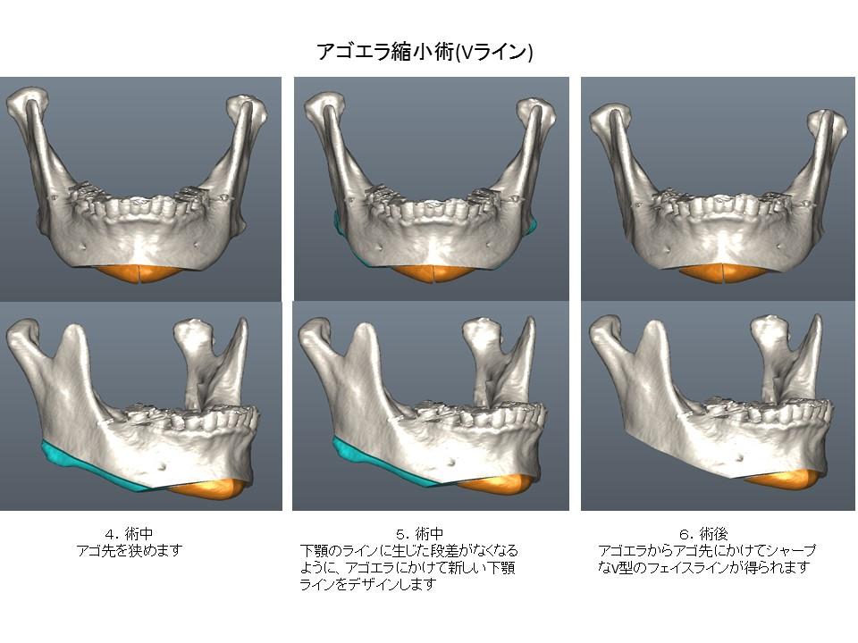 アゴエラ縮小術 Vライン形成 下顎骨形成術 顔面輪郭形成術2
