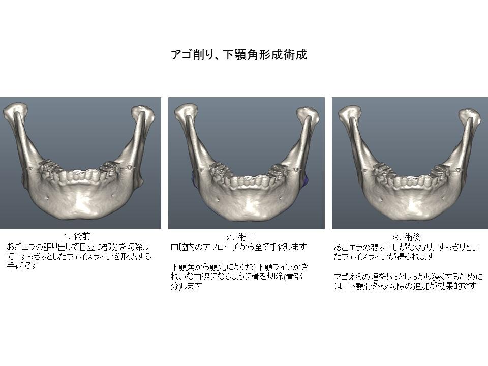 あごエラ縮小・あご先(オトガイ部)形成・外板切除術1