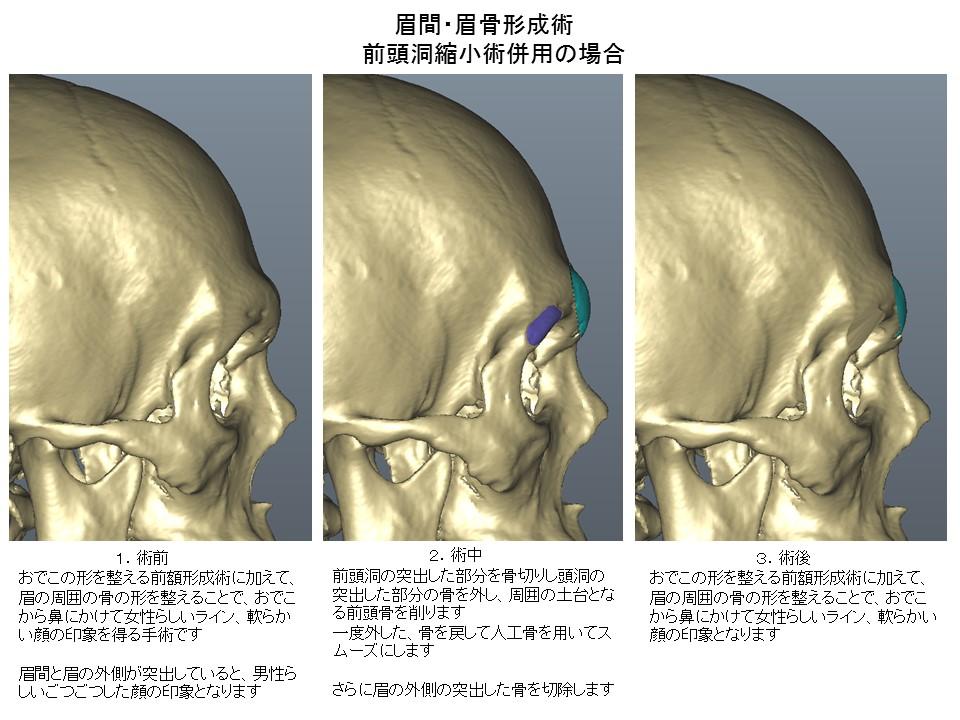 ひたい・おでこ・前額部の形成手術 前頭洞縮小術2