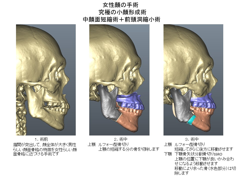 女性顔の手術 究極の小顔形成術 中顔面短縮術+前頭洞縮小術2