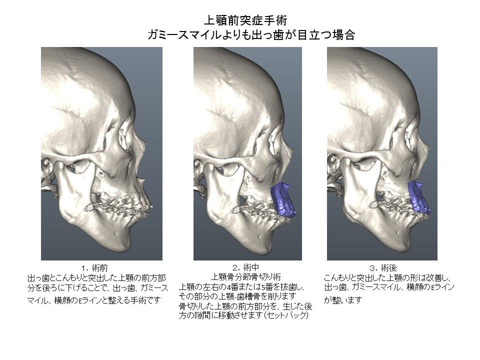上顎前突症手術:ガミースマイルよりも出っ歯が目立つ場合2