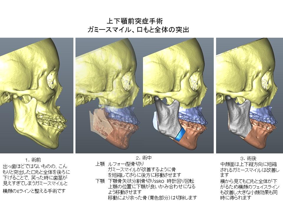 口もと全体が出ている・上下顎前突症・ガミースマイルの上下顎骨切り術2