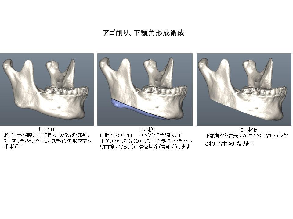 あごエラ縮小・あご先(オトガイ部)形成・外板切除術2