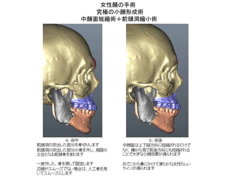 女性顔の手術 究極の小顔形成術 中顔面短縮術+前頭洞縮小術4