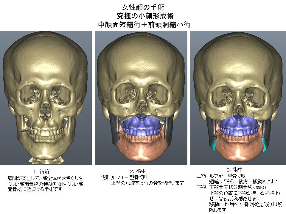 女性顔の手術 究極の小顔形成術 中顔面短縮術+前頭洞縮小術1