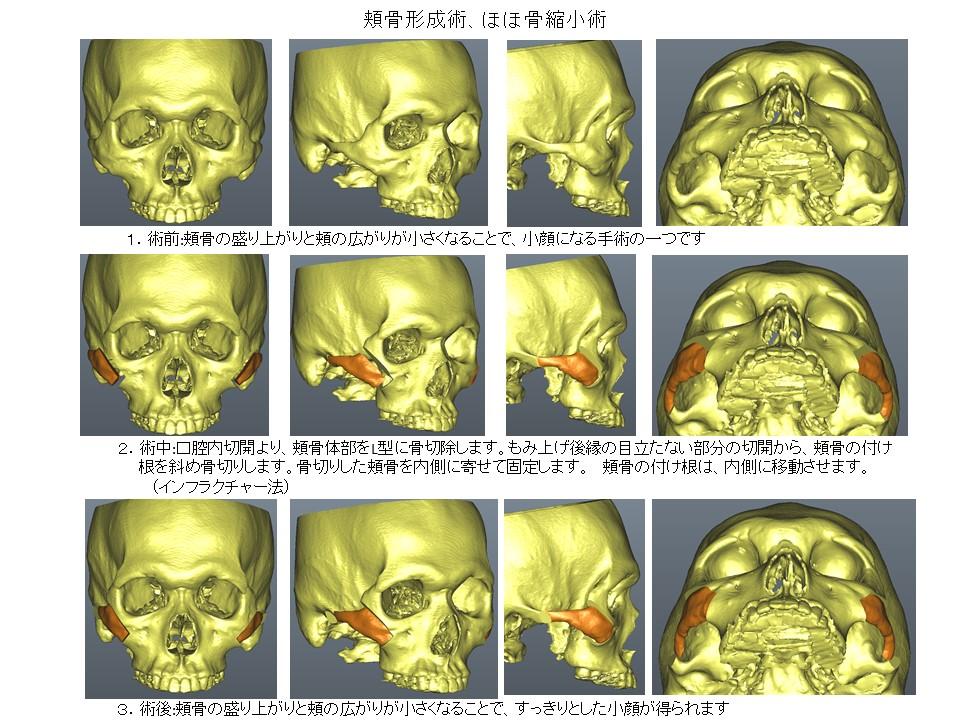ほほ骨/頬骨の形を小さく整える手術:頬骨縮小形成術