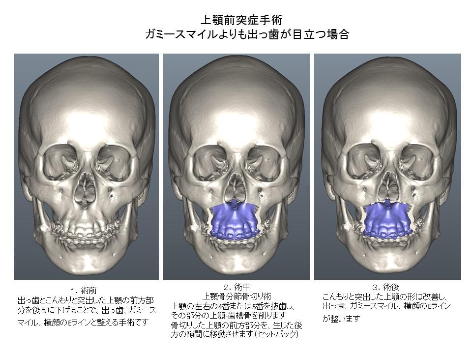 上顎前突症手術:ガミースマイルよりも出っ歯が目立つ場合1