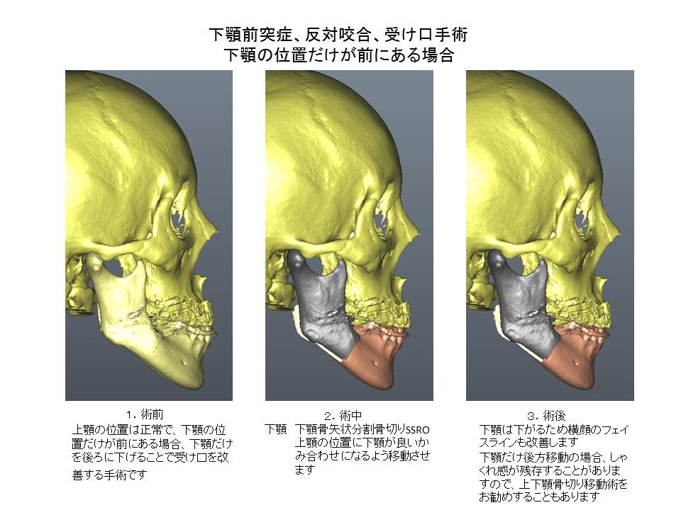 下顎前突症、反対咬合、受け口、しゃくれ手術: 下顎の位置だけが前にある場合