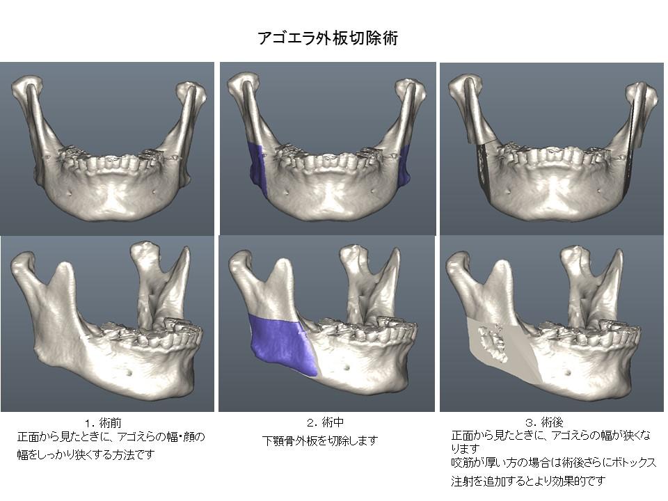 あごエラ縮小・あご先(オトガイ部)形成・外板切除術3