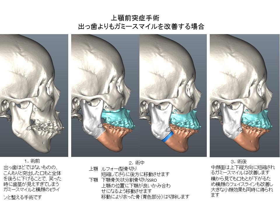 上顎前突症手術:出っ歯よりもガミースマイル、口もとの突出・こんもりを改善する場合2